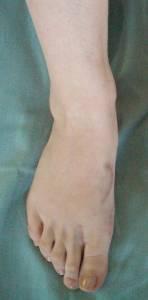 После операции hallux valgus